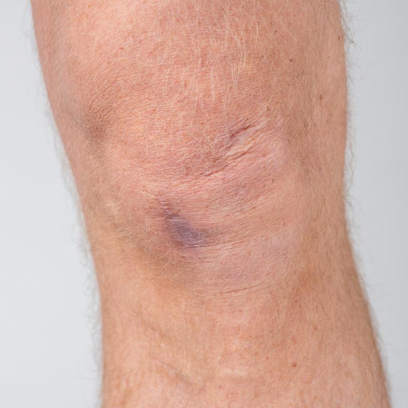 Forsikringsfoto: et skadet knæ
