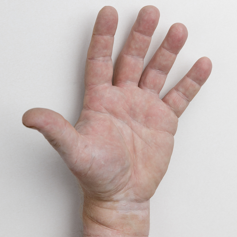 Forsikringsfoto: Skade på hånd
