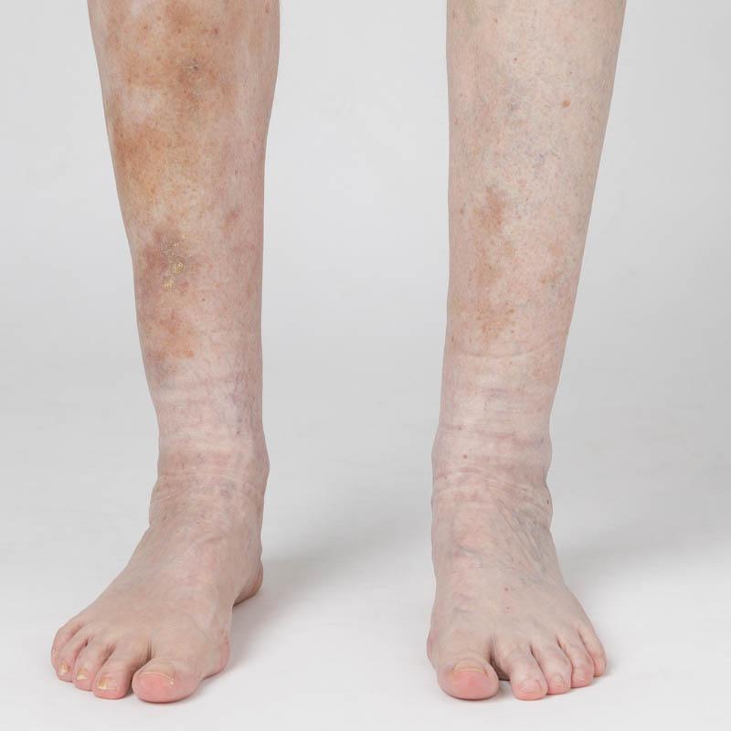 Forsikringsfoto: skade på ben
